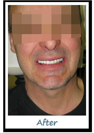 Case 1 Image - Implant Dentistry Ottawa