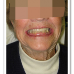 Case 2 Image - Dental Implants Ottawa