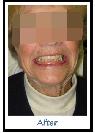 Case 2 Image - Dental Implants Ottawa