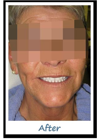 Case 3 Image - Implant Dentist Gatineau