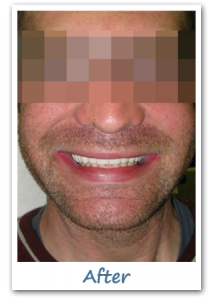 Case 4 Image after New Teeth in a Day - Dental Implant Gatineau