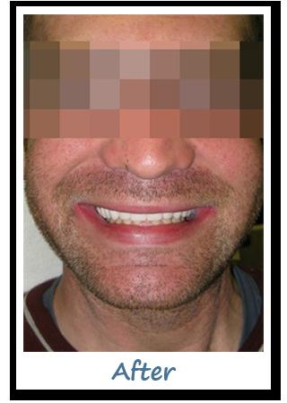 Case 4 Image - Dental Implant Gatineau