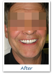 Case 5 Image after New Teeth in a Day - Implant Dentistry Ottawa