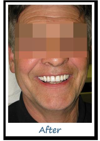 Case 5 Image - Dentistry Implant Gatineau