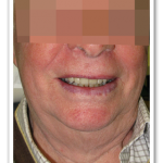 Case 6 Image - Dentures Cost Gatineau