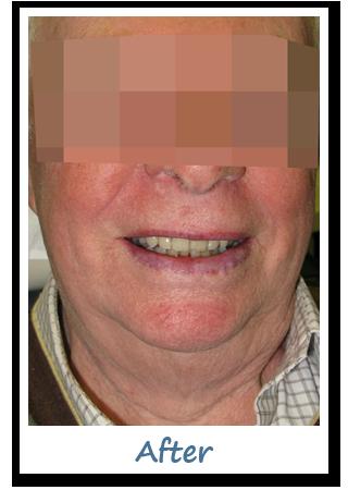 Case 6 Image - Smile in a Day Ottawa