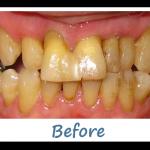Case-6-Before-Teeth